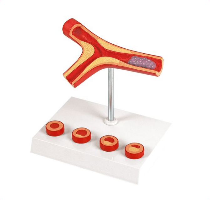 Atherosclerosis and Thrombosis model - code: 6070.10 rect