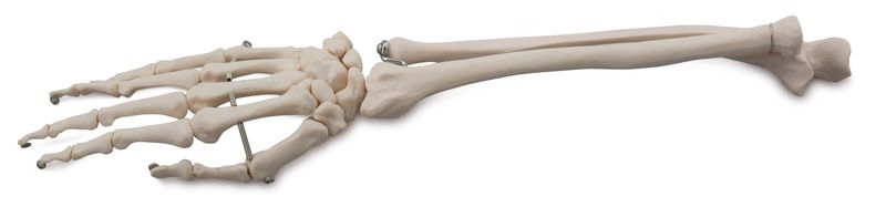BONES OF THE HAND AND FOREARM 6041.21