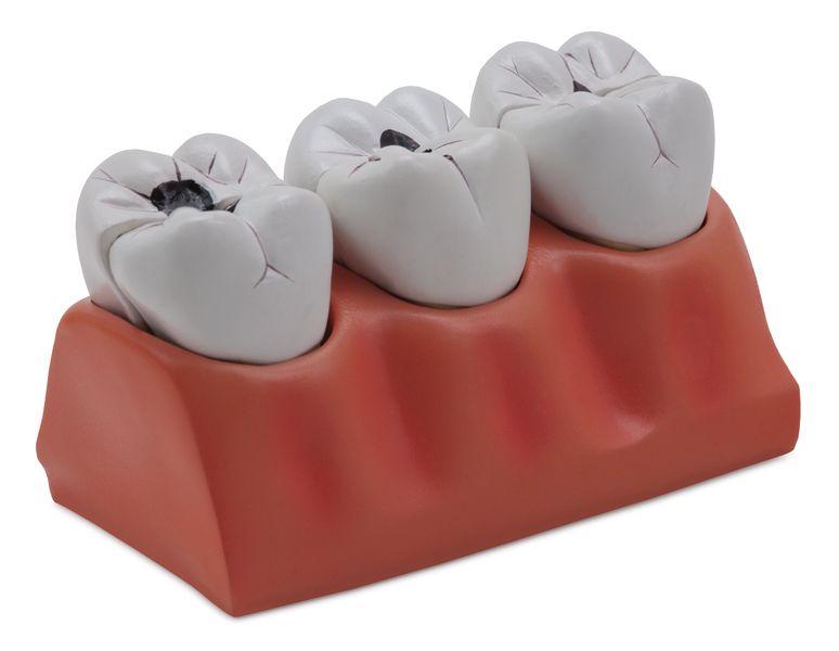 Dental Caries Model - code: 6041.70 a