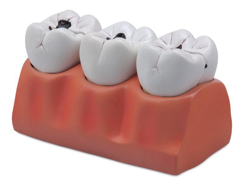 Dental Caries Model - code: 6041.70 b