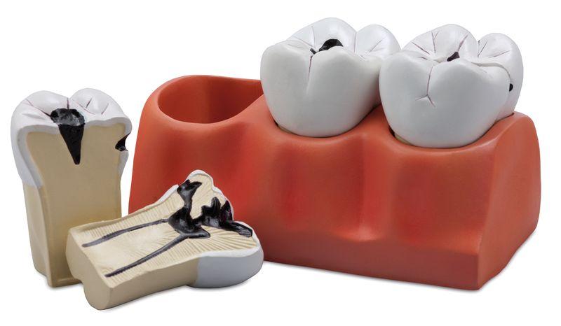 Dental Caries Model - code: 6041.70 c