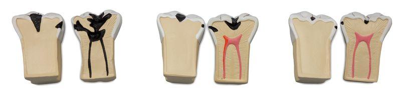Dental Caries Model - code: 6041.70 d