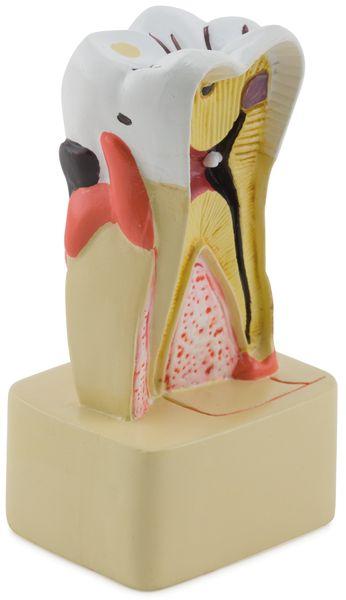 Dental Pathology Model - code: 6041.71 b