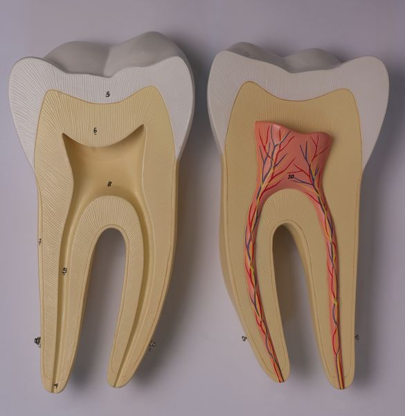 Incisor, Canine and Molar - code: 6041.82 b