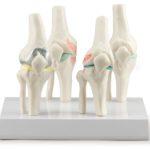 Knee Joints Set - code: 6042.01