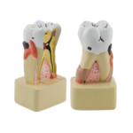 Dental Pathology Model - code: 6041.71