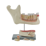 Lower Jaw, 6 Parts - code: 6041.60