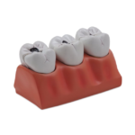 Dental Caries Model - code: 6041.70