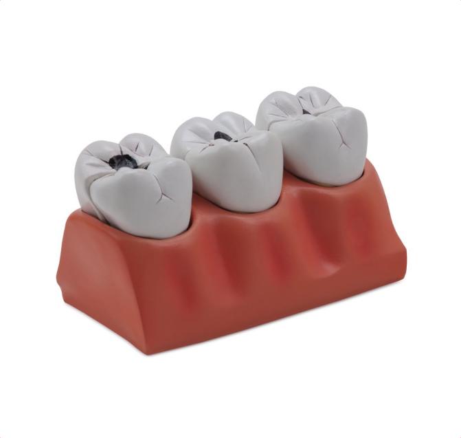 Dental Caries Model - code: 6041.70 rect