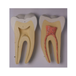 Incisor, Canine and Molar - code: 6041.82