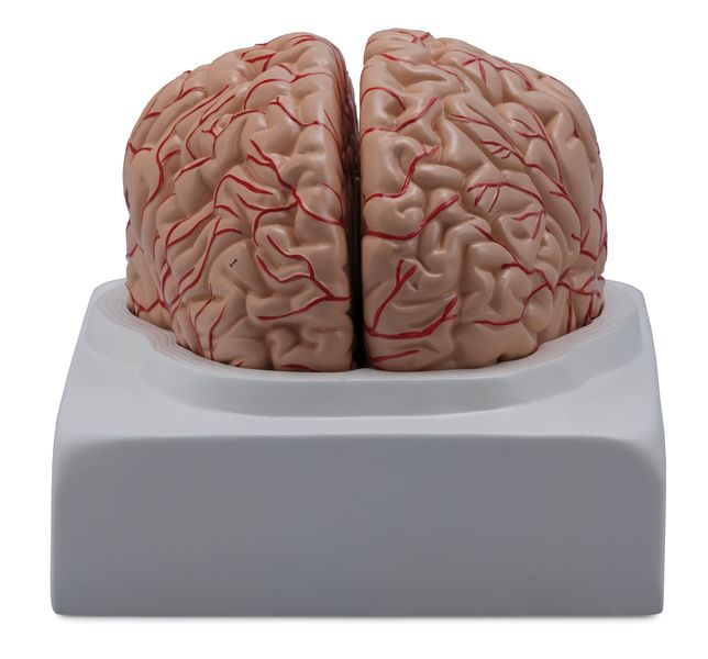 Brain with Arteries, 2 Parts - code: 6160.01 a