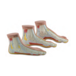 Normal and Abnormal Feet, Set of 3 - code: 6000.10